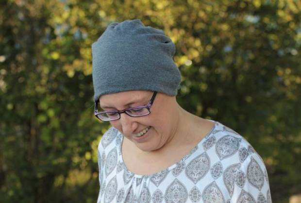Alopecia Areata Awareness Month-September-kreisrunder Haarausfall