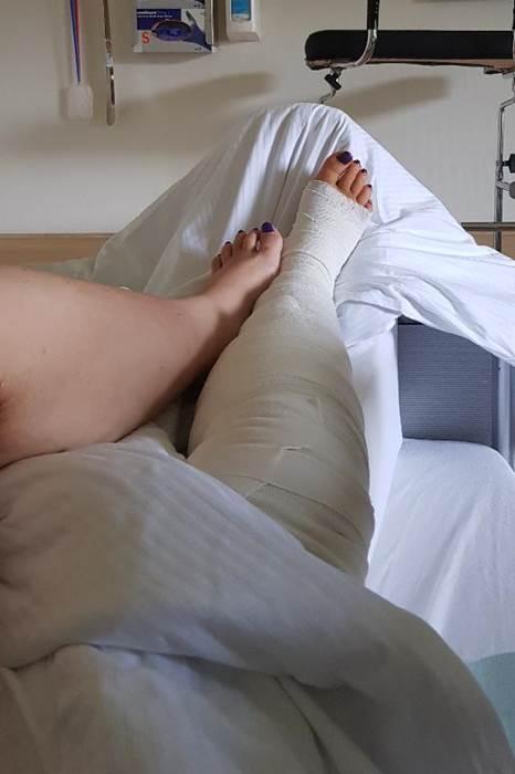 Venen-Operation-Krampfadern-Entfernung-Lipödem