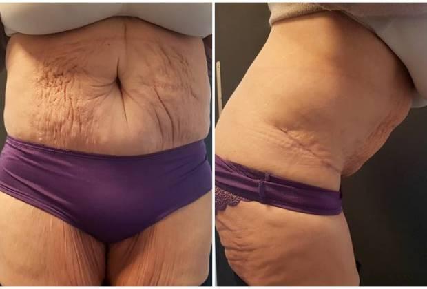 Bauchdeckenstraffung-Bilder-vorher-nachher-unzufrieden-WHO-Straffungsoperation