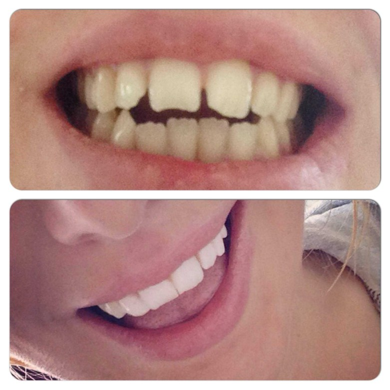 Before and after dental composite bonding: My Hollywood smile | UK Lifestyle Blog