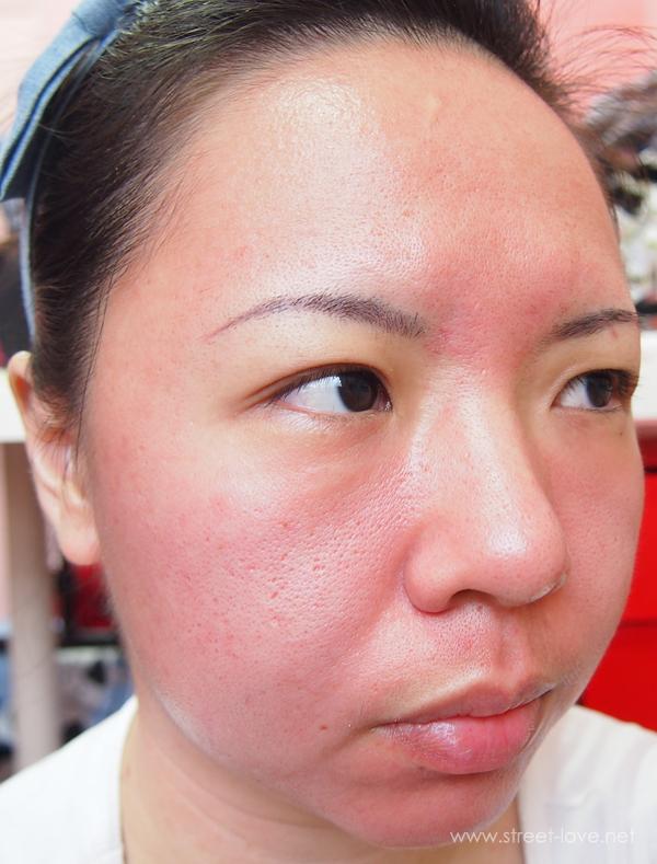 Skin Allergy2