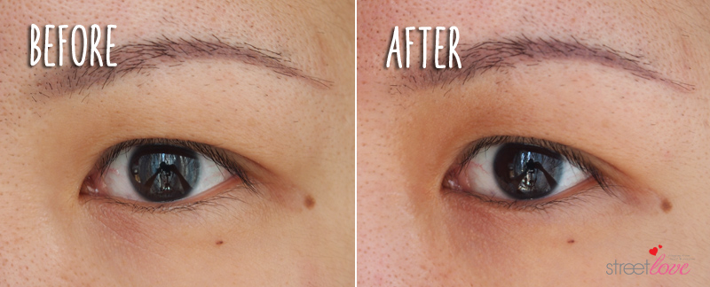 Purederm Anti-Wrinkle Gel Patches Before and After