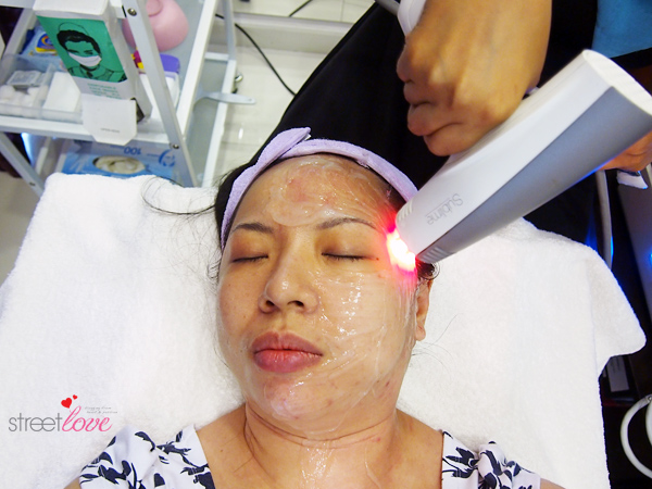Renee Clinic Sublime Skin Contouring 16