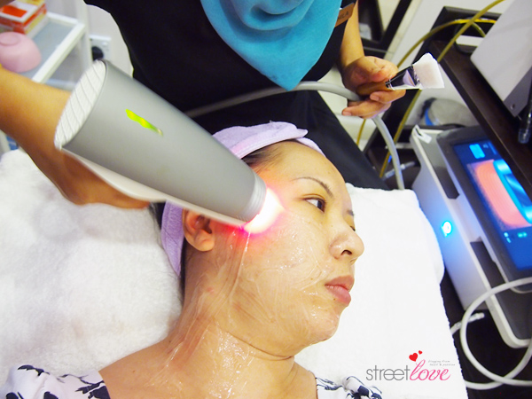 Renee Clinic Sublime Skin Contouring 5