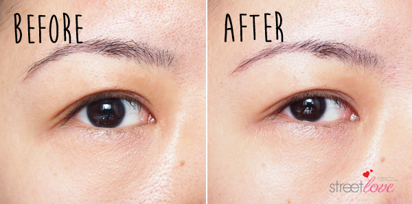 SK-II Magnetic Eye Care Kit Before and After Right