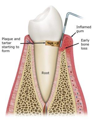 Gum disease treatment in Leeds at Street Lane Dental Implant Clinic