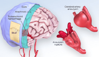 What You Should Know About Cerebral Aneurysms | American Stroke Association