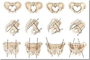 Pelvis variations