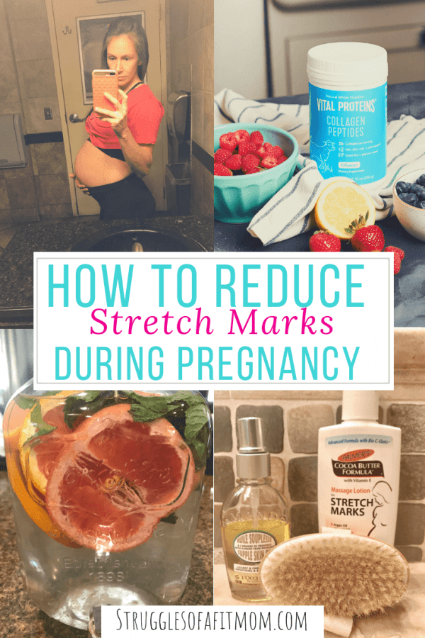 The best products to help prevent stretch marks during pregnancy