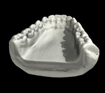 various_scans_teeth_2.jpg