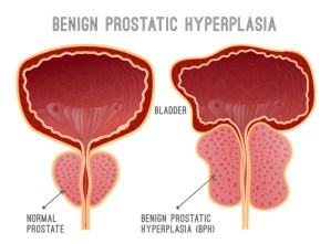 comparison of normal prostate and one with bph