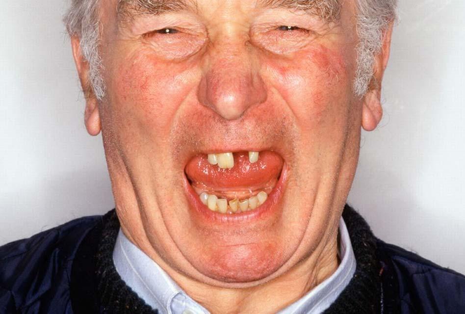 Perte des dents