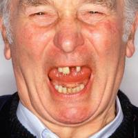 What reasons might cause people to lose their teeth?