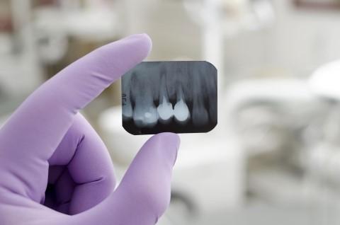 _dentalDam_chiururgia_orale_4.jpg