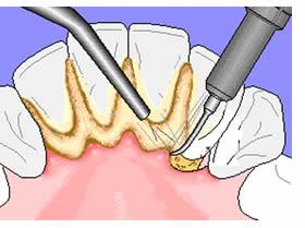immagine che illustra la metodica di asportazione del tartaro per una migliore igiene orale, propedeutica ad un corretto sbiancamento dentale