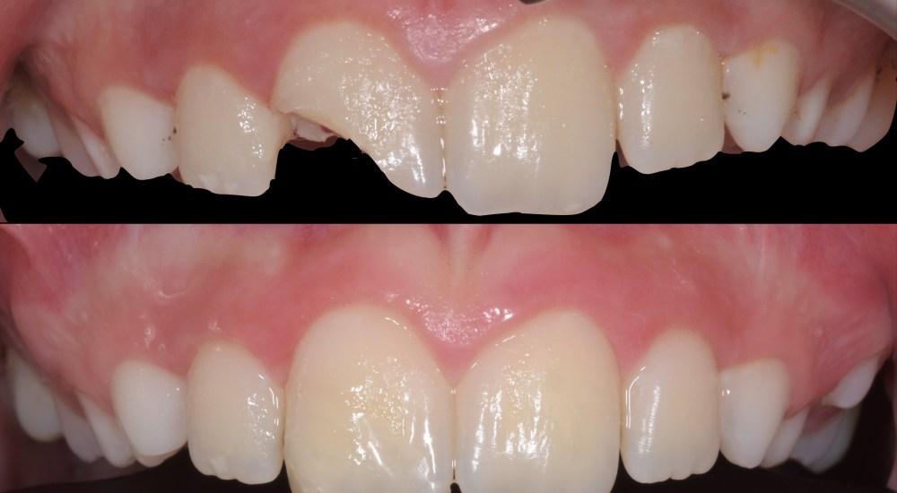 odontoiatria conservativa Studio Dentistico Forcellini Dalla Corte