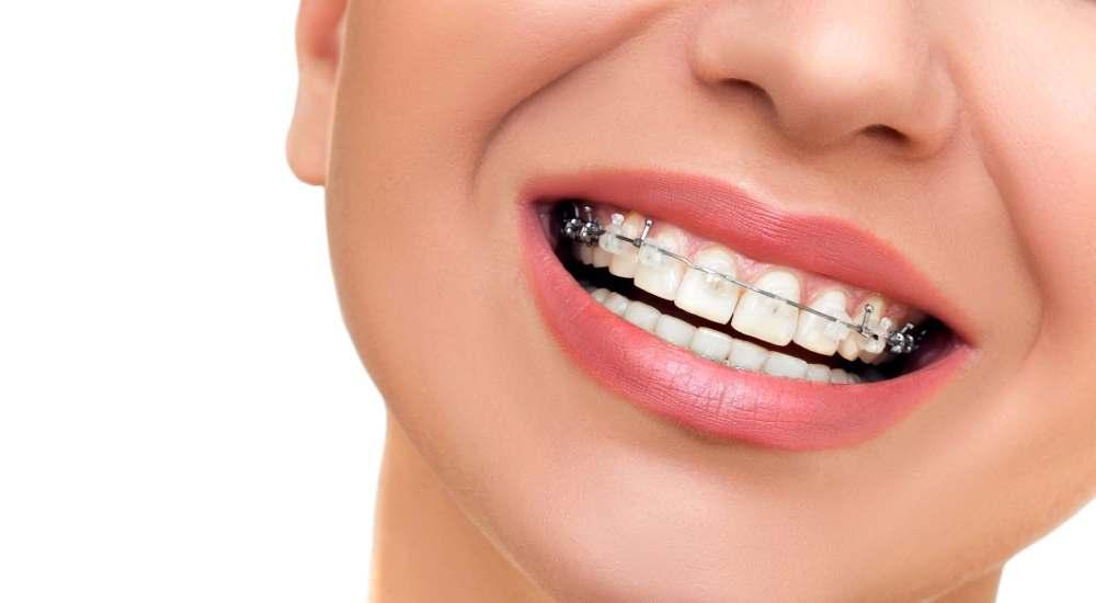 ortodonzia studio dentistico forcellini dalla corte