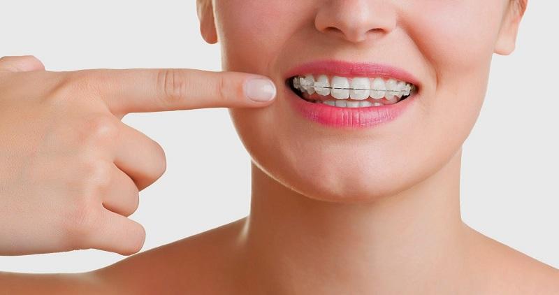 Ortodonzia per adulti, cosa c'è da sapere