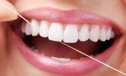5 cose che dovresti sapere prima di pensare alle  faccette dentali.