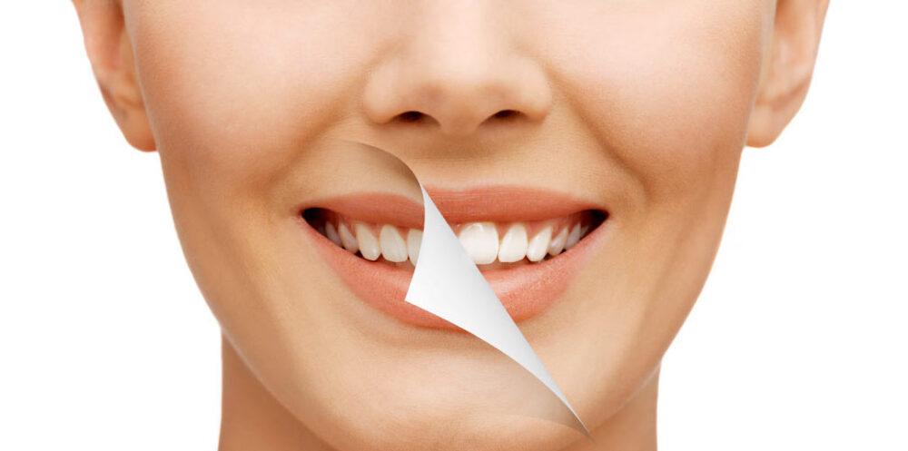 Come si sbiancano i denti