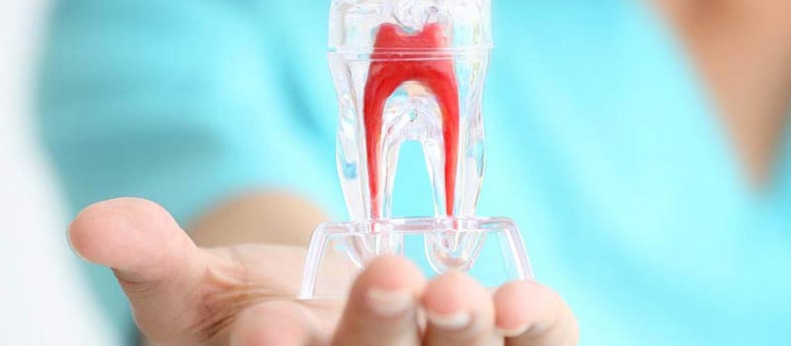 Studio Dentistico Pagliari   Endodonzia   Dentisti in Parma Soragna Fidenza Fontanellato Fiorenzuola
