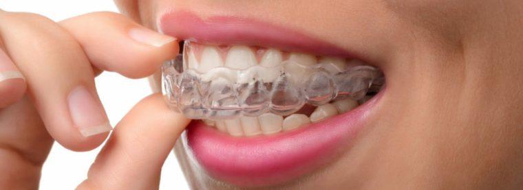 Agevolazioni Cure Odontoiatriche e Protesi Studio Pagliari
