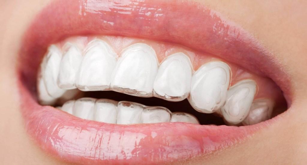 Studio Dentistico Pagliari | Ortodonzia Invisibile | Dentisti in Parma Soragna Fidenza Fontanellato Fiorenzuola