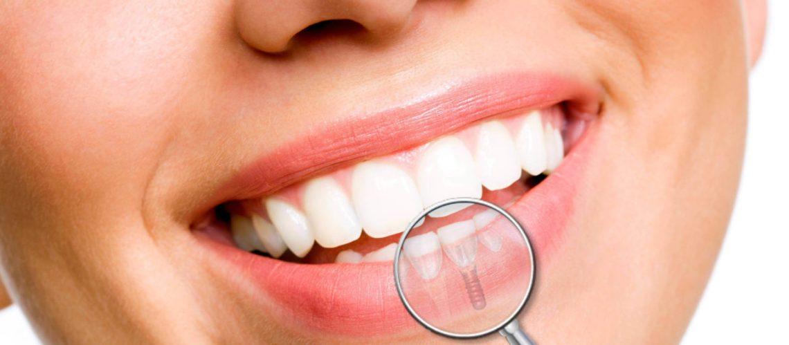 Studio Dentistico Pagliari | Implantologia | Dentisti in Parma Soragna Fidenza Fontanellato Fiorenzuola