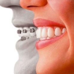 Prima visita specialistica ortodontica