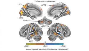 Brain scans for multitasking study