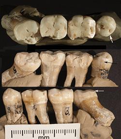 Neanderthal teeth used in University of Kansas study