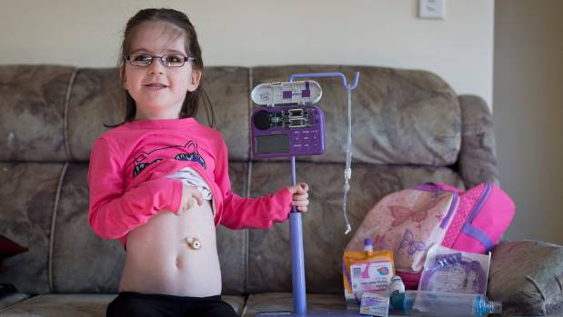 Kayla White, 5, poses at home with her feeding support apparatus.