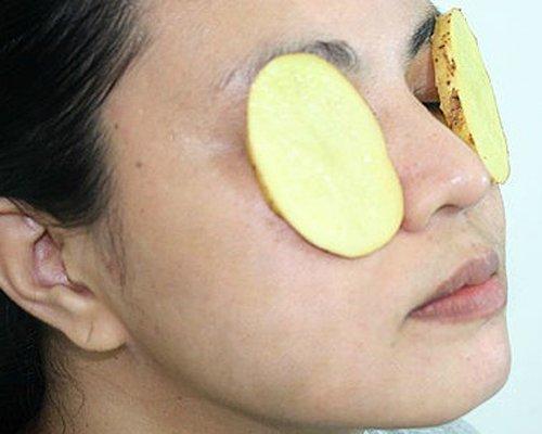 Home remedies to treat dark circles by Potato