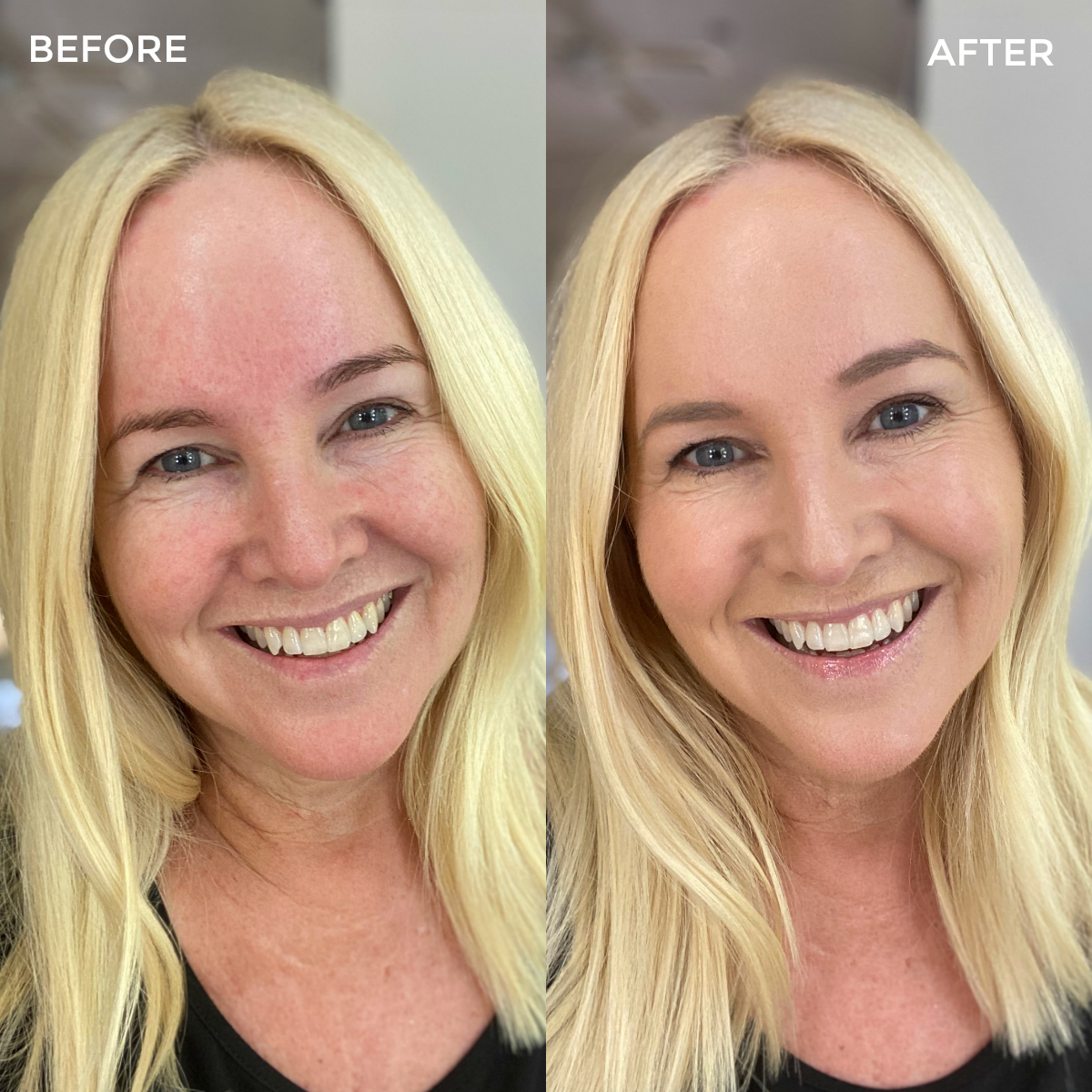 Before and After Trinny London Everyday Makeup routine