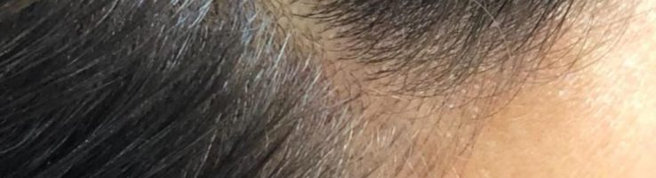 7 Remedies To Stop Your Hair Loss Naturally Stylish Belles