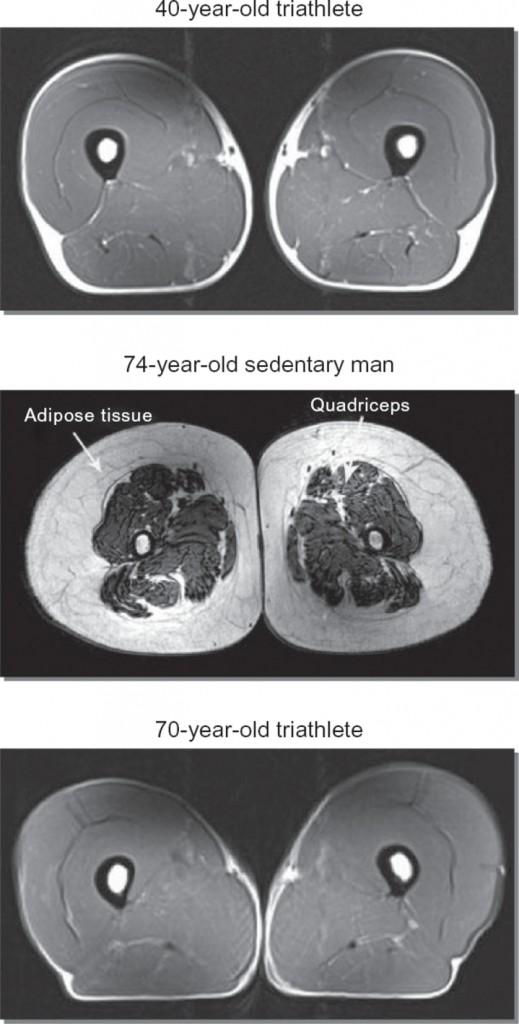 Lårmuskler träning ålder hälsa 2
