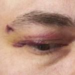 Dos delincuentes fueron atacados por los ciudadanos luego de robarle la cicla a una joven en Engativá