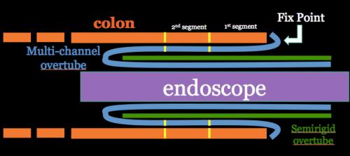 Fig.1 Outline of multi-channel shape-locking overtube system inside colon