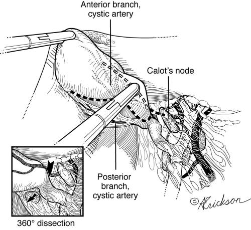 Importance of the Node of Calot in Gall Bladder Neck Dissection: A ...