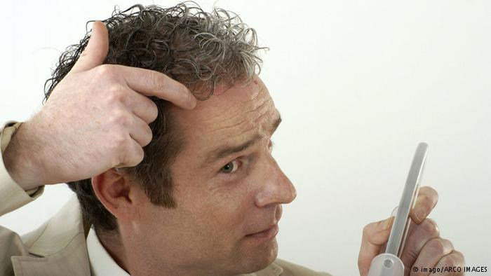 ستة أسباب غير متوقعة لقشرة الرأس