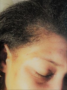Closeup of edges after using Edge Naturale on my hairline