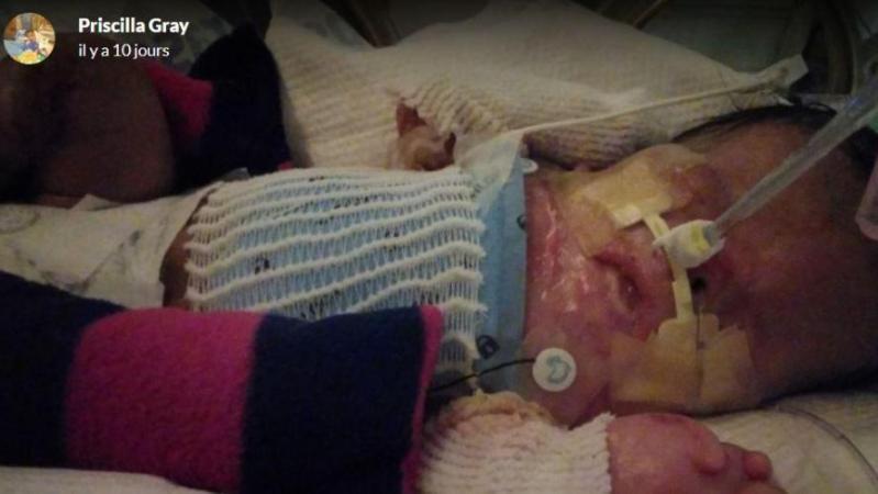 Un bébé naît sans peau, dans un état stable mais pas sorti d'affaire: les médecins se bousculent pour comprendre sa maladie