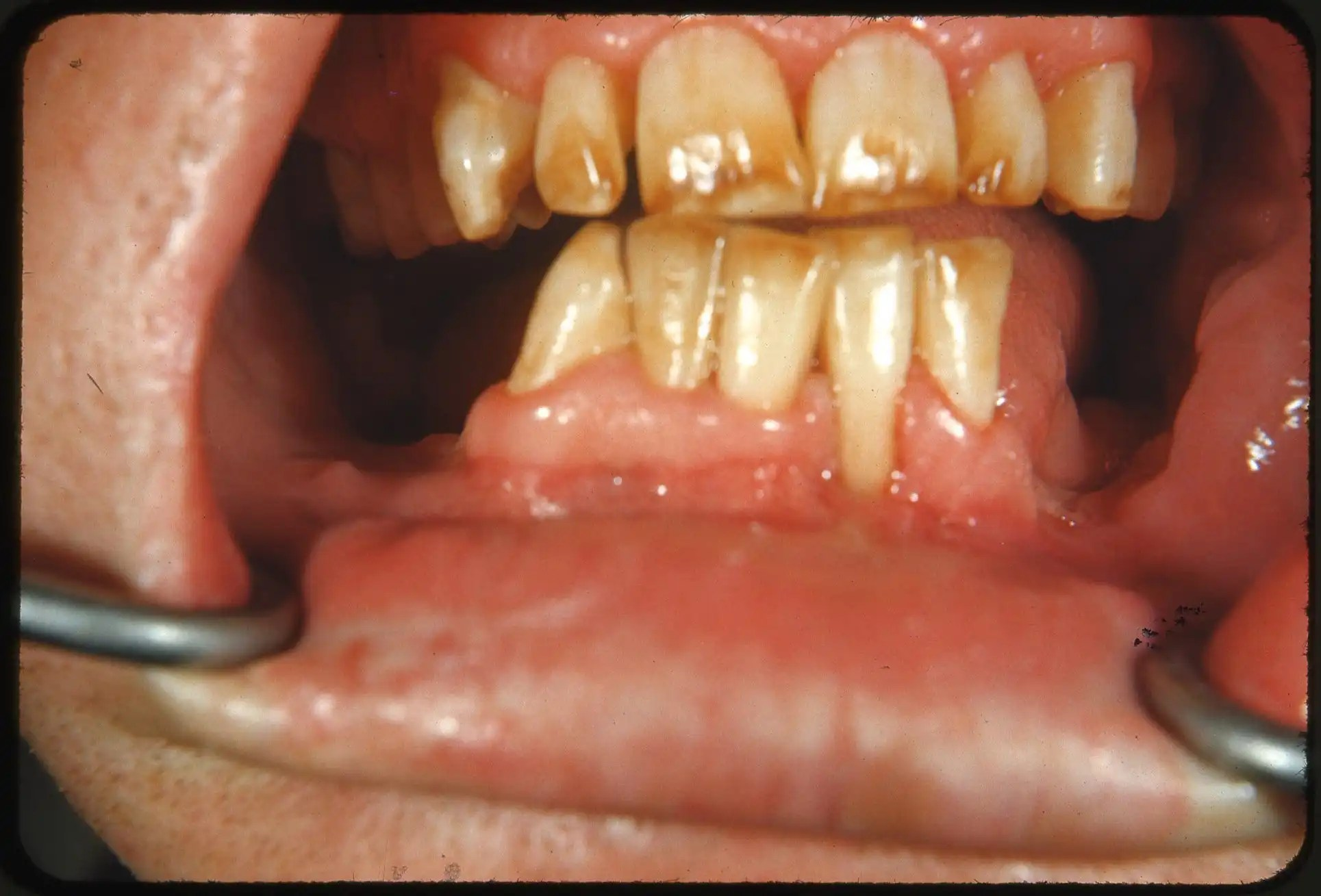 Tooth discoloration; what causes it