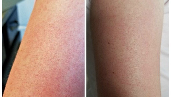 Microdermabrasion At Home With Microderm MD From Trophy Skin
