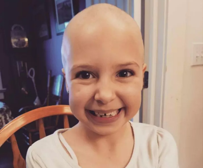 Mom Of Bald Daughter Comes Up With Brilliant Idea For