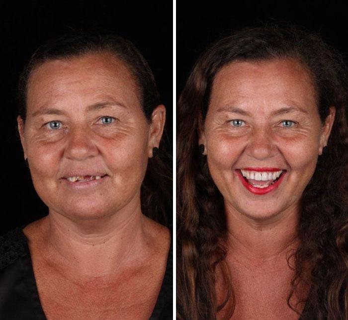 brazilian dentist fixes smiles free