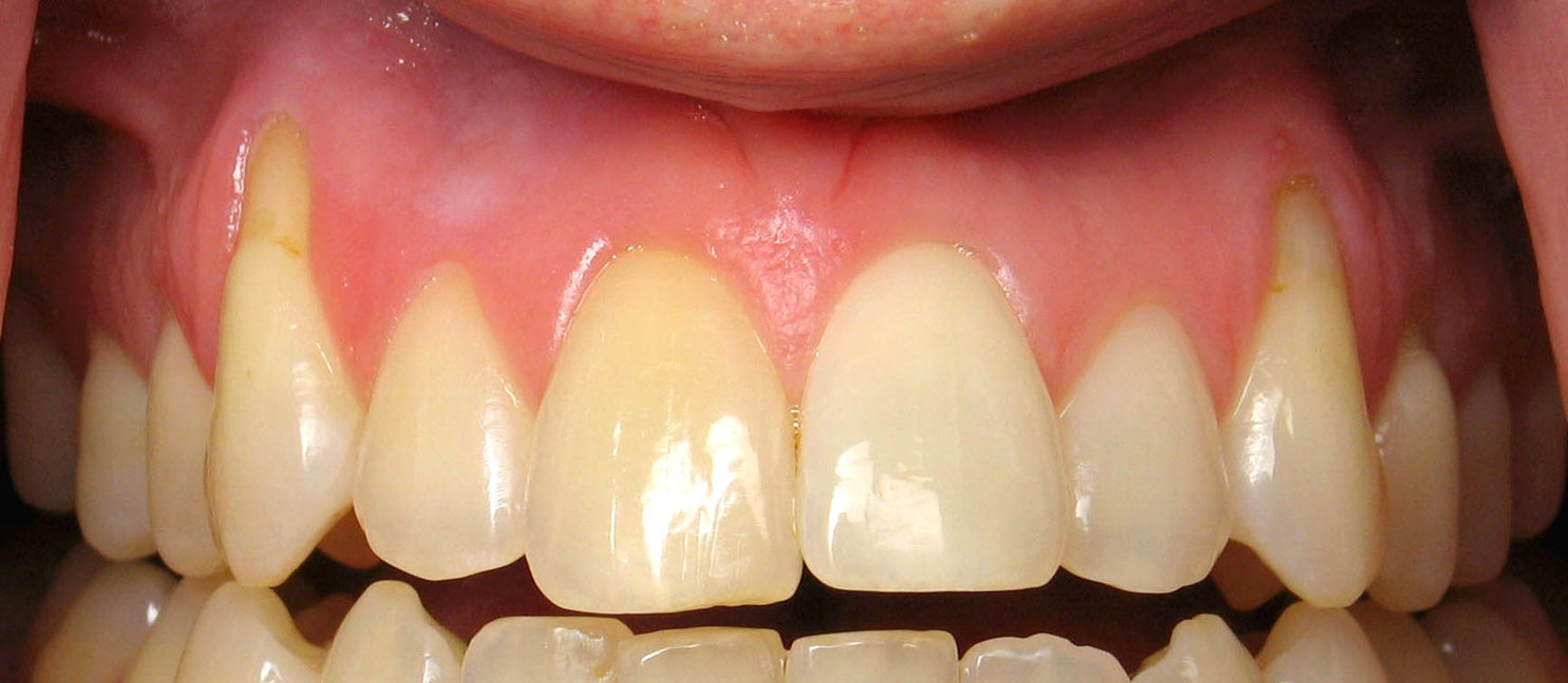 Receding Gums Causes Treatment Surgery And Prevention