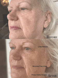 Linda Ramey Before and After Results from Sunshine Botanicals Double Cleanse Process side view