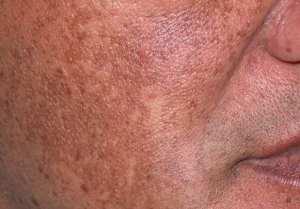hyperpigmentation and blotchy skin