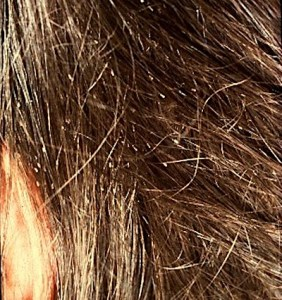 Louse nits in hair